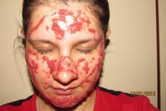Клубничная маска для жирной кожи с яйцом
