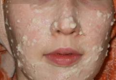 Овсяная маска для лица (сметана, овсянка, желток, мед)