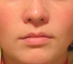 Маска из ежевики и сливок для придания свежести коже лица