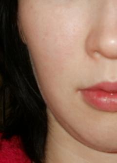 Маска от пигментации кожи лица - творог, желток, лимонный сок