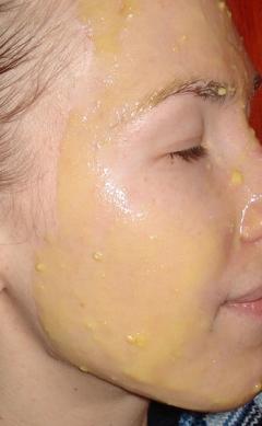 Маска из пчелиного воска для лица (мед, сок лимона, оливковое масло, воск)