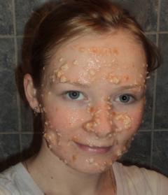Помидорная маска против черных точек (для жирной кожи)