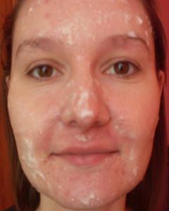 Маска для жирной кожи лица из лимона, белка и меда