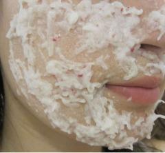 Весенняя маска из редиски, оливкового масла и крахмала