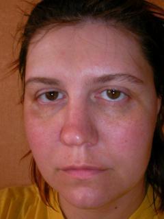 Маска из сыворотки для всех типов кожи лица